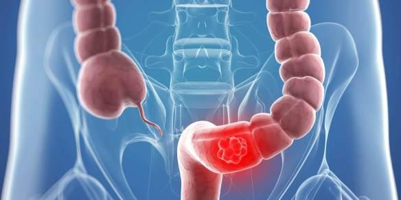 rak debelog crijeva