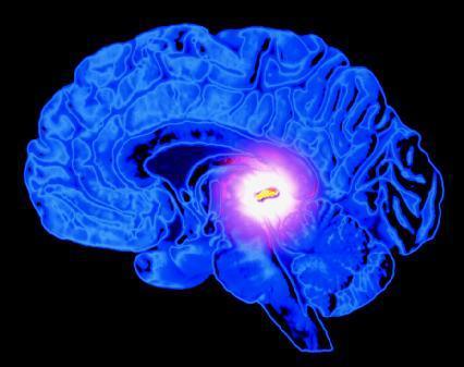 Epifizda je žljezda veličine zrna graška koja luči melatonin potreban za zdrav cirkadijski ciklus. Ukoliko je zatrovana fluorom, ona neće dobro funkcionirati što će loše utjecati i na spavanje.