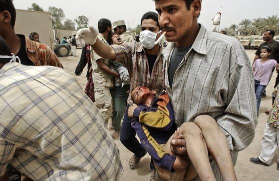 """U ratu najviše stradavaju civili, to je činjenica koju nikada ne smijemo zaboraviti. Na slici vidite iračkog dječaka koji je nastardao u američkom """"oslobađanju"""" njegove zemlje."""