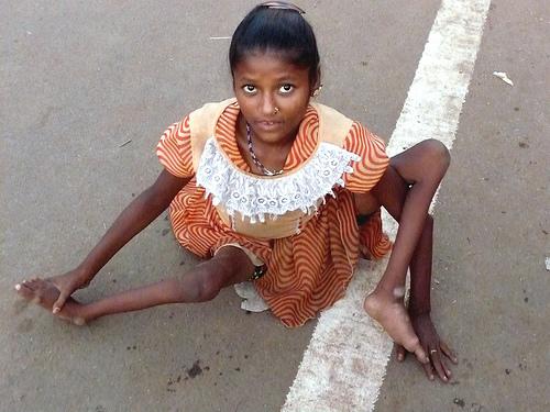 Zaklada Billa i Melinde Gates financijski podupire i javno odobrava masovna cjepljenja netestiranim cjepivima protiv dječje paralize u Indiji.