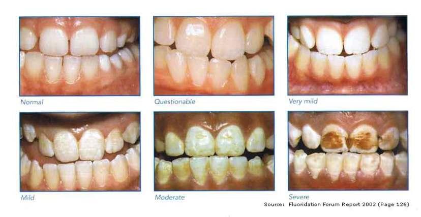 Slika prikazuje razne stupnjeve fluoroze, stanja truljenja zuba uzrokovanog unosom fluorida.  Slika je vlasništvo
