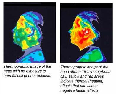 Termografski prikaz, učinaka zračenja mobitela na ljudsku glavu.