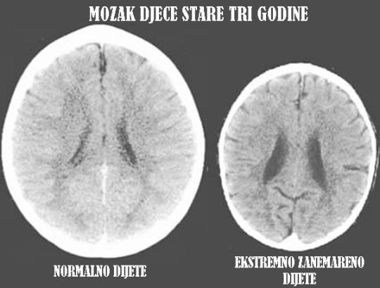 Na desnoj strani vidite mozak djeteta koje je odraslo u normalnoj obitelji, s lijeve strane vidite mozak djeteta iste starosti, koji je bio ekstremno zanemarivan.