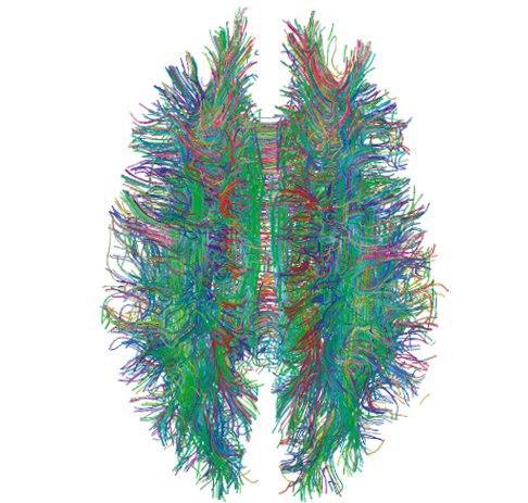 Moždana simfonija, 3D snimka neuro impulsa i veza u mozgu. Magnezij je osnovni element za pravilan rad mozga i protok moždanih impulsa.