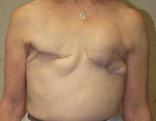 Djelomična mastektomija na lijevoj dojci i poptuna mastektomija na desnoj dojci. Užasna procedura koju su morale izdržati mnoge  žene koje u stvari nisu imale rak.