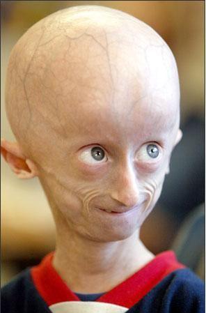 Djete oboljelo od sindroma Progerie.