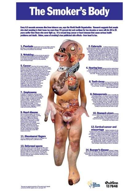 Plakat s navodnim bolestima koje nastaju od pušenja duhana. Efektan način dezinformiranja javnosti.