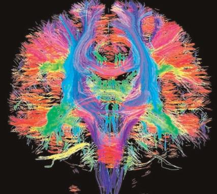 Predivna 3D snimka optimaliziranog i balansiranog rada obije moždane hemisfere.