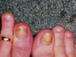 Tipična gljivična infekcija noktiju, slika prije tretmana koloidnim srebrom