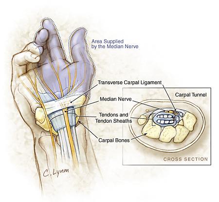 Anatomija ručnog zgloba prikazuje karpalni ligament i živac medijan, te presjek pritisnutog živca.