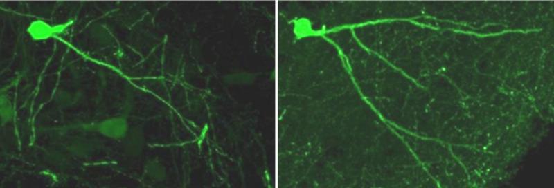 Depresivni štakori pokazuju smanjenu aktivnost neurona bez liječenja (lijevo), ali su vraćeni na normalnu aktivnost proteina neuritin (desno).Slika je vlasništvo: Hyeon Sin sur, PNAS (2012).