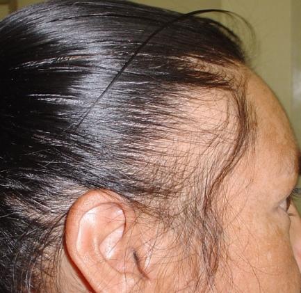 Alopecija - gubitak kose uzrokovan glutenom.