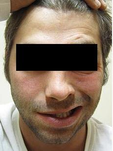 Facijalna paraliza mišića - pareza je najčešće uzrokovana glutenom koji je izrazit neurotoksin.