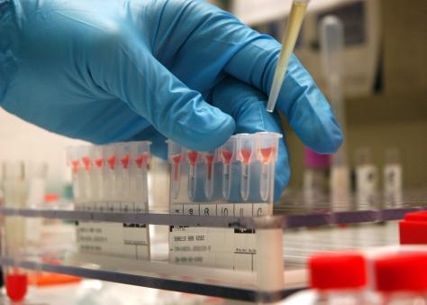 Hoće li uskoro medicina otkriti još novih rijetkih krvnih grupa?