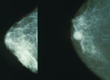 Rak dojke - snimke napravljene mamografijom.
