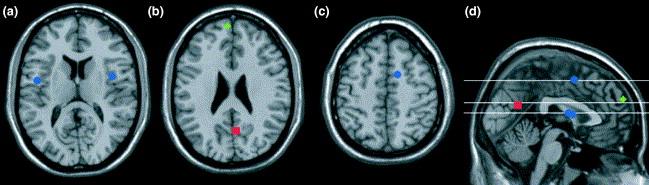 Reducirana aktivacija kognitivnih procesa povezanih s prepoznavanjem osjećaja u raznim dijelovima mozga.