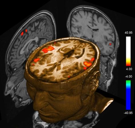 Funkcionalna magnetska rezonanca uspijeva zabilježiti uzorke snova.
