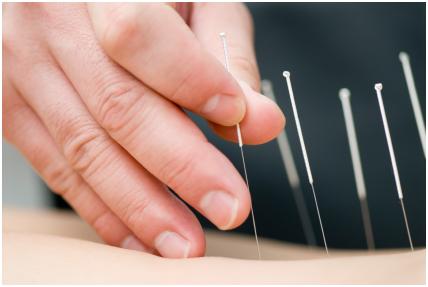 """Pacijenti ispitivani u studiji su izjavili da su osjećali bolje rezultate od tretmana lažnom akupunkturom pri primjeni kod brižnog terapeuta, za razliku od tretmana kod šturog, """"hladnog"""" terapeuta."""