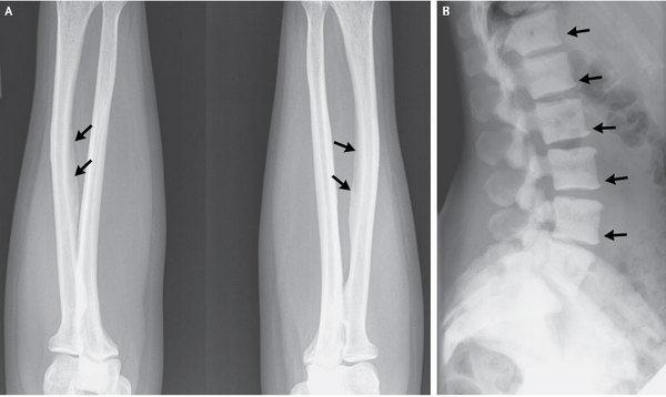 skeletal-fluorosis-130320.jpg1363817565