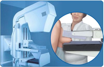Osim što je pregled neugodan i bolan jer na dojku vrši pritisak od 23 kilograma, mamografija je štetna zbog iznimno visoke radijacije te netočnih i zbunjujućih podataka.