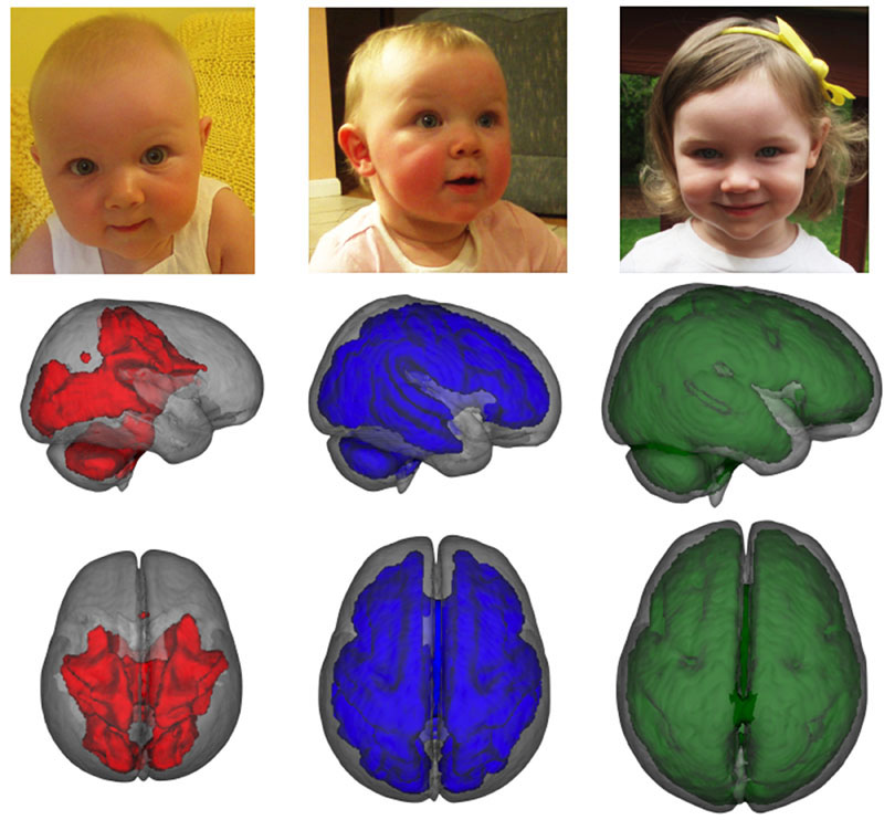 Djeca hranjena isključivo hranjena majčinim mlijekom tijekom najmanje tri mjeseca imaju do 30% dodatnog rasta u ključnim dijelovima mozga. Slika prikazuje kako se bijela tvar razvija s godinama. Credit: Baby Imaging Lab/Brown University