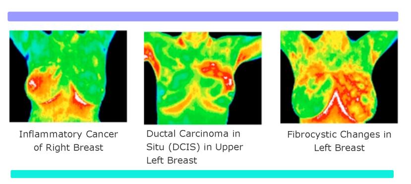 Termografski prikaza raka dojke i fibrocističnih promjena u dojci.