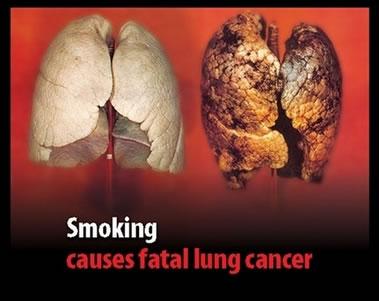 Na brojnim kutijama cigareta nalaze se zastrašujuće slike crnih pluća, koja navodno pripadaju preminulim pušačima, na žalost u pitanju je čista LAŽ, to nisu pluća pušača.