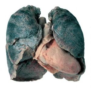 Ovo no nisu pušačka pluća, ovo je pneumokonioza, bolest crnih pluća. koja uglavnom nastaje zbog udisanja ugljene prašine, no bez obzira na sve, nalaze se propagandnim materijalima koji tvrde - ovo su crna pušačka pluća.