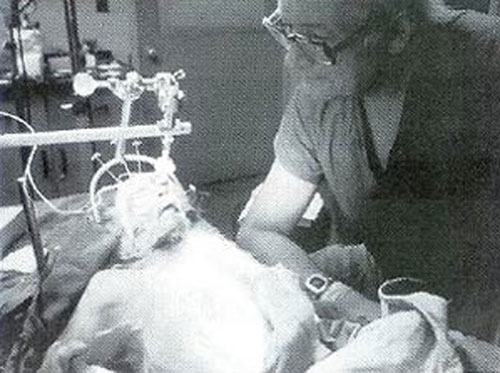 Dr. White je 1970. izvršio transplataciju glave resus majmuna koja nije završila baš sretno, odnosno, majmun je uginuo u roku od par sati.