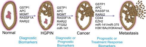 HGPIN je vrsta predtumornog stanja, u kojima stanice prostate imaju određene anomalije no one se ne šire i ne stvaraju metastaze.