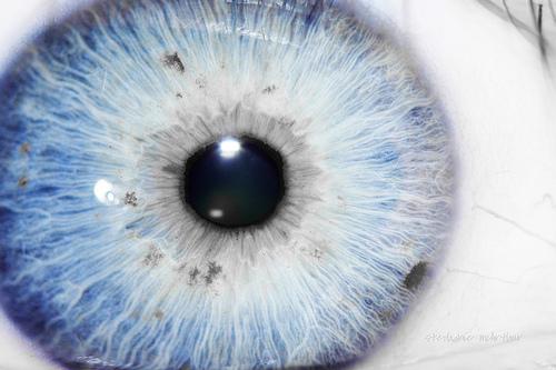 Ljudi s očnim albinizmom su često iznimno osjetljivi na danje svjetlo.