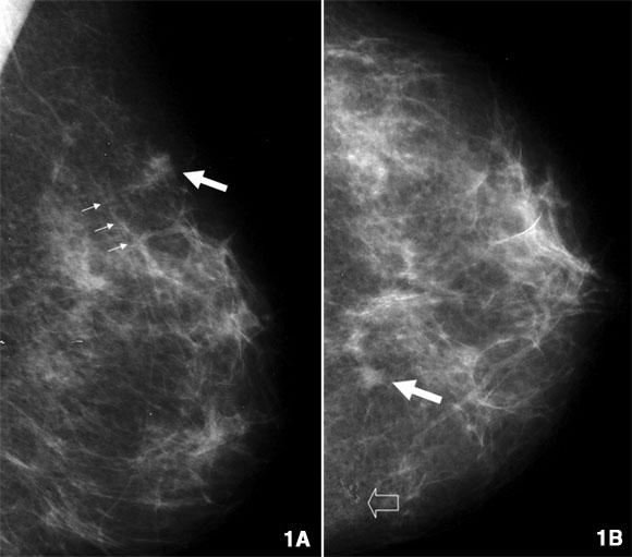Bez obzira na veliku propagandnu pompu oko mamografije i njene navodne preciznosti i točnosti, sve je više pokazatelja kako je u pitanju zavaravanje ljudi i njihovo laganje. Na slici vidite primjer kalcifikacije mliječnih žlijezdica koje je mamograf protumačio kao rak.