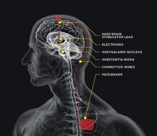 Dubinska moždana stimulacija je neurokirurški zahvat pri kojem se ugrađuje elektroda u predio mozga koji kontrolira stanja i promjene raspoloženja poput anksioznosti i depresije uključujući bipolarne i opsesivno kompulzivne poremećaje.