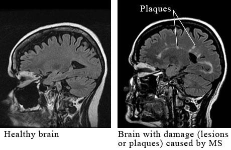 Mozak pacijenta oboljelog od multiple skleroze s lezijama.
