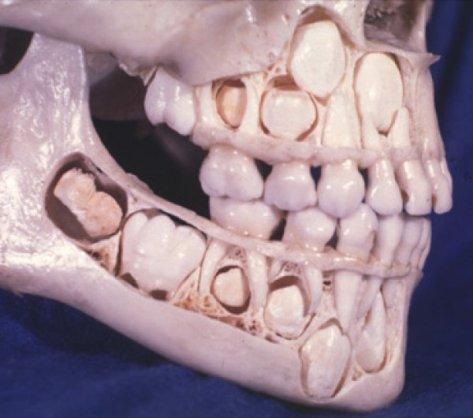 Skriveno od pogleda, rasadište stalnih zuba koji istiskuju plitke mliječne zube iz dječje vilice.