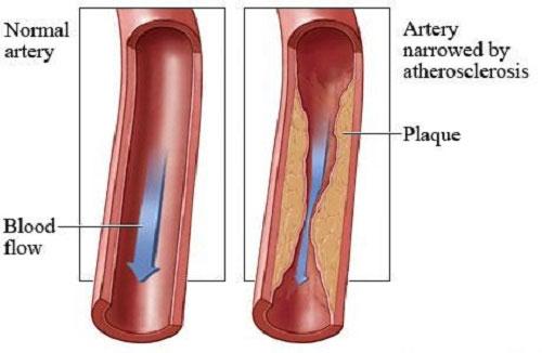 Smatra se da je ateroskleroza prvi korak ka srčanim i moždanim udarima, a upravo nar može prevenirati ta stanja.
