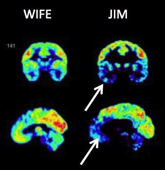 Razlika u snimkama mozga Jima i njegove žene je više nego li očigledna, dok je žena normalno empatično biće, Jim ima velke probleme sa svladavanjem agresije i kontroliranju svojih negativnih emocija.