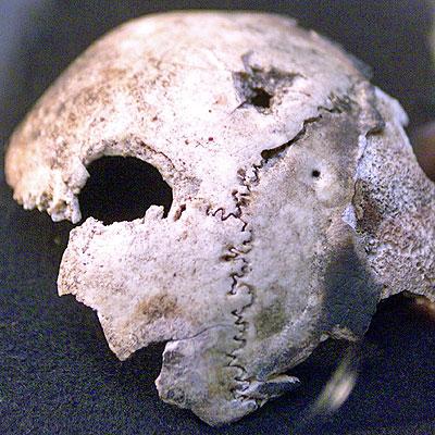 Dio kosti lubanje s rupom od metka iz Ruskog Nacionalnog Arhiva, za kojeg se tvrdilo da je pripadala Adolfu Hitleru. Nakon DNK analize, utvrdilo se da je ista propadala ženi staroj 40 godina.