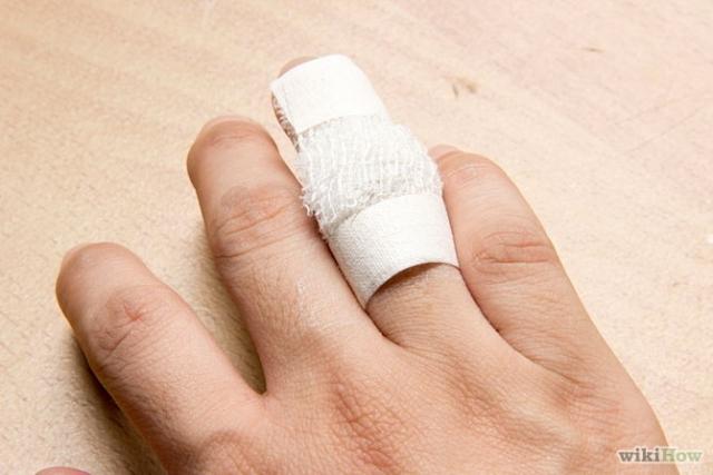 Rezultat slika za bradavice na rukama prirodna rješenja