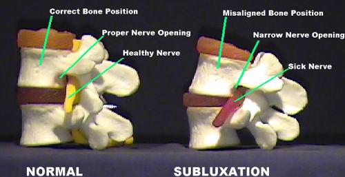 Vertebralna subluksacija je izraz za nepravilne položaje diskova u kralježnici, čime su živci oštećeni i ne funkcioniraju pravilno.