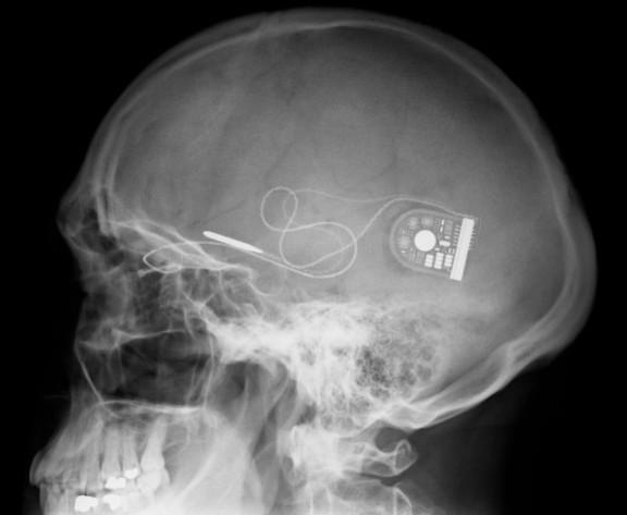 Operatvini čip s bežičnom komunikacijom usađen u glavu osobe s invaliditetom kako bi mogla komunicirati s kompjuterom. Ovu tehnologiju su stvorili znanstvenici Sveučilišta Brown.