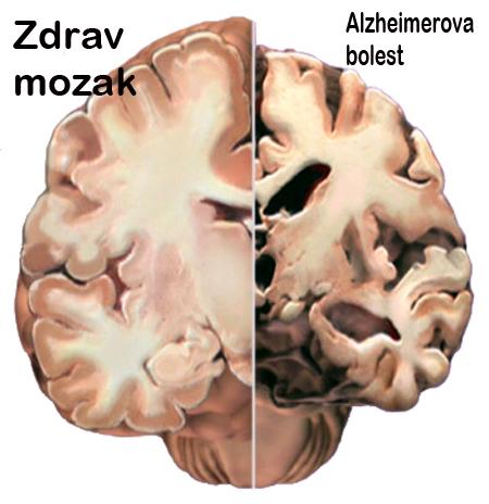 Na lijevoj strani vidite zdrav mozak, na desnoj strani vidite mozak u uznapredovalom stadiju Alzheimerove bolesti.