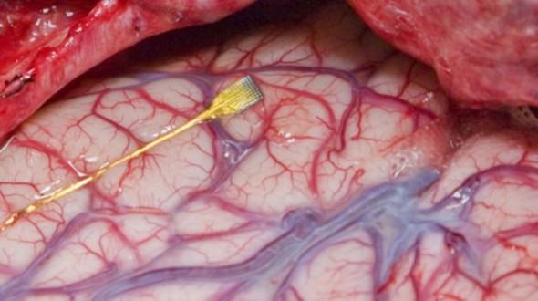 Hoće li ovako izgledati crna kutija na ljudskom mozgu?