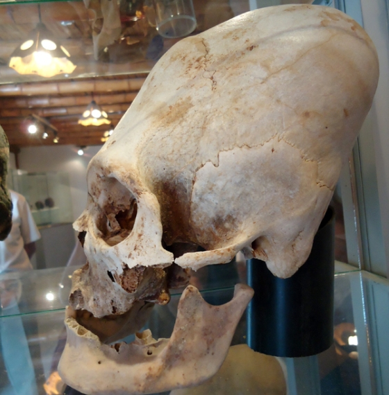 Another unusual prolonged skull from Paracas.