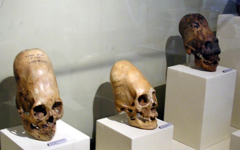 "Skull from Paracas or ""Extended Skull from Ice."""