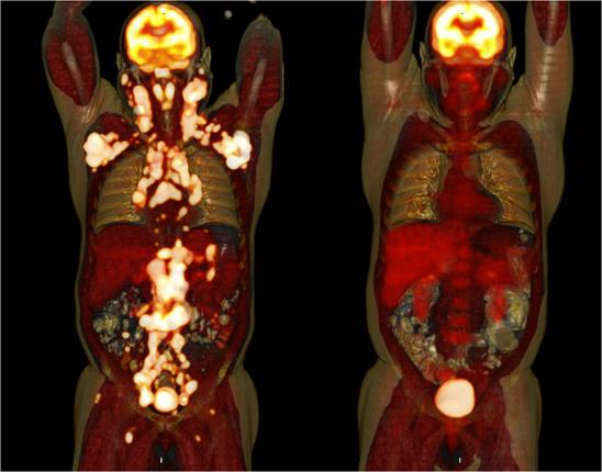 Na lijevoj strani slike vidite pacijenta u uznapredovalom stadiju non-Hodkinova limfoma.