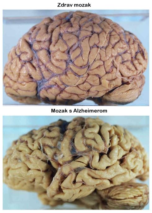 Na slici vidite dramatične razlike između zdravog tkiva mozga i mozga u uznapredovalom stadiju Alzheimerove bolesti.