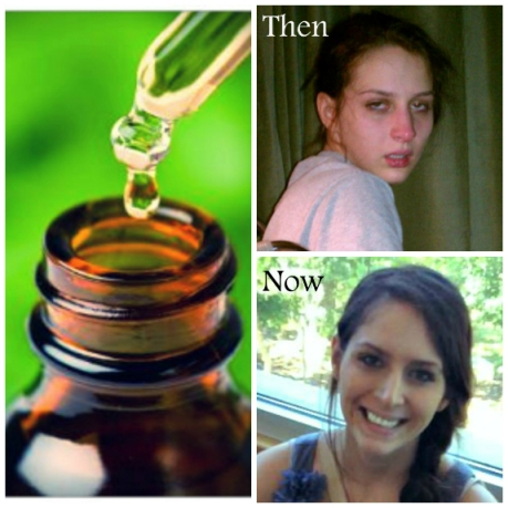 Neobična priča mlade Alexis, na gornjoj desnoj slici vidite Alexis s brojnim simptomima Lymeove bolesti, na donjoj desnoj slici je Alexis danas.