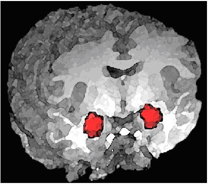 Amigdala normalnog ljudskog bića je simetrična, dok je kod psihopata uvijek jedna strana nerazvijenija od druge.