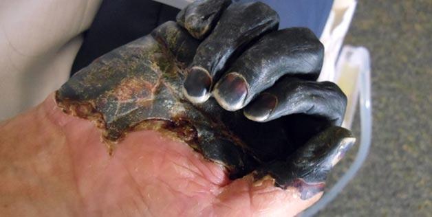 Bubonsko crnilo, nije bilo poznato u srednjem vijeku, no znanstvenici ne otkrivaju kako je moguće da je crna kuga zapravo bila bubonska kuga iako zaraženi nisu imali njene simptome. O čemu je tu riječ?